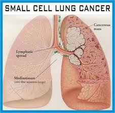 Stage 4 Lung Cancer >> Stage 4 Lung Cancer Learn About Cancer Life Expectancy Stage 4